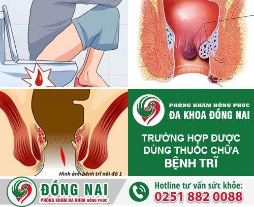 Các trường hợp được dùng thuốc chữa bệnh trĩ