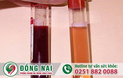 Đi tiểu có mủ và máu có phải bị bệnh lậu?