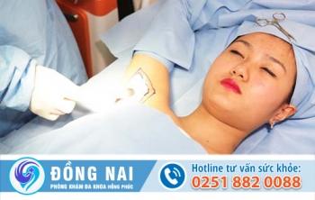 Phương pháp cắt tuyến mồ hôi nách tại Đa khoa Hồng Phúc
