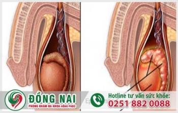 Những bệnh tinh hoàn thường gặp ở nam giới thường gặp